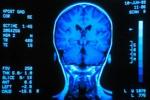 18 Feb 2003 --- Gyro scan of the back of brain --- Image by © Carson Ganci/Design Pics/Corbis